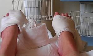 dislodged cast